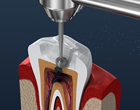 illustration of root canal procedure
