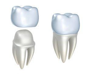 Your dentist in West Orange, NJ discusses dental crowns.